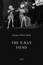 The X-Ray Fiend