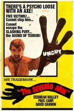 The Severed Arm